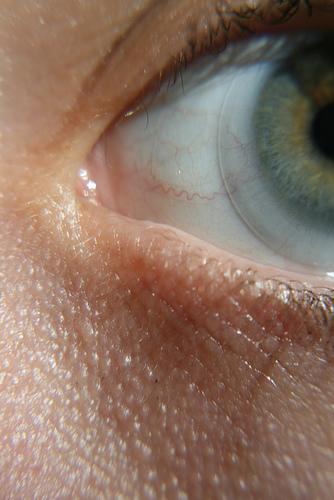 LASIK eye surgery vs Cataracts